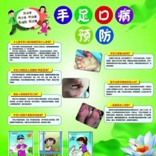 手足口病预防